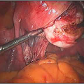 Myomectomy